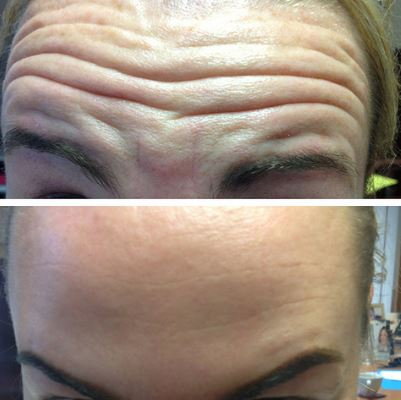 Botox Before After picture